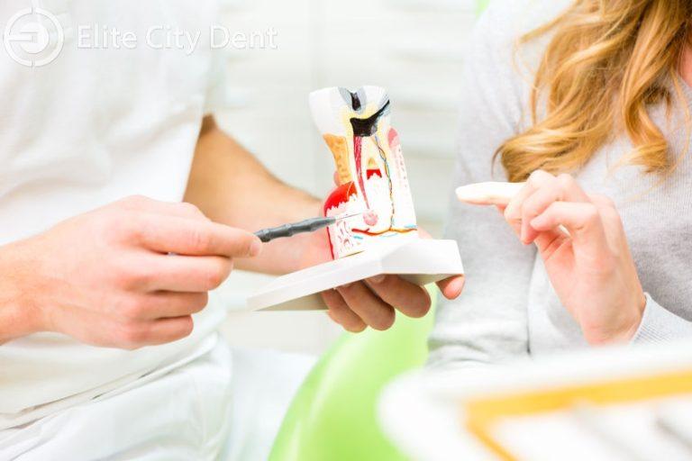 endodontia si tratamentul pulpei dentare
